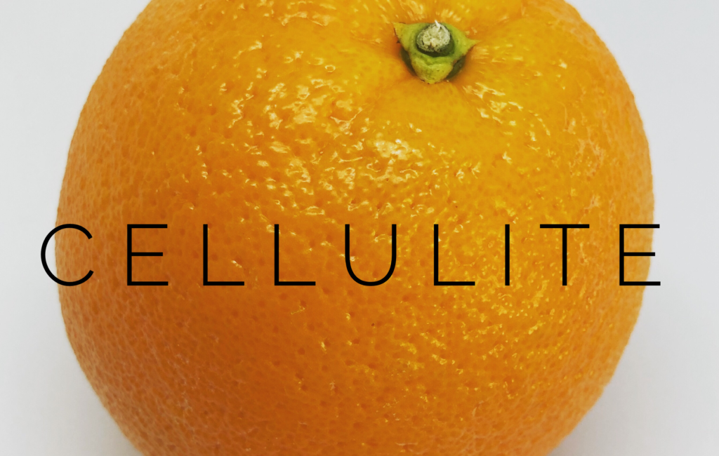 Cellulite – What You Can Do About it including a DIY Scrub that really works!